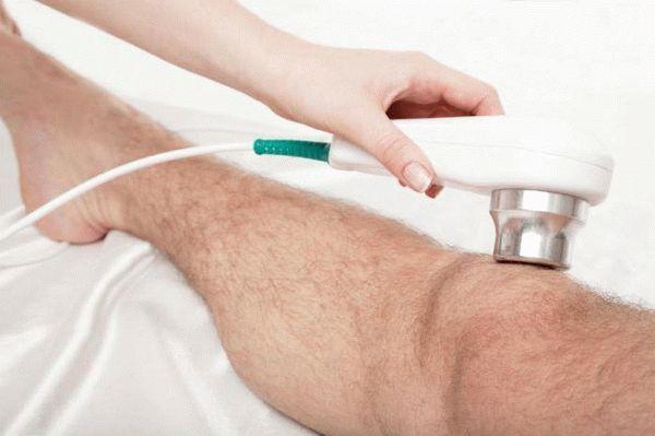 Синовиальная саркома — почему возникает и как лечить