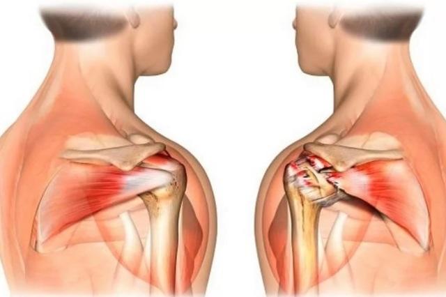 УЗИ плечевого сустава: как делают и что показывает
