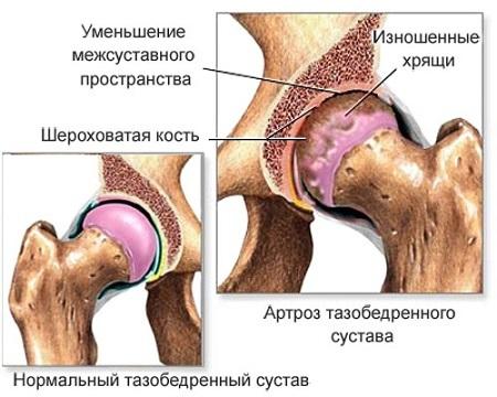 Артрит тазобедренного сустава: симптомы, лечение, фото