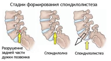 Почему возникает боль в пояснице при наклоне вперед