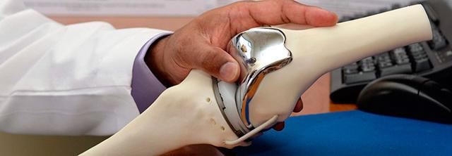 Замена коленного сустава по квоте - особенности получения