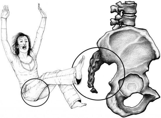 Кокцигодиния: причины, симптомы, лечение и виды
