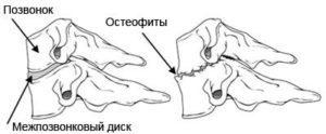 Деформирующий спондилез грудного отдела позвоночника