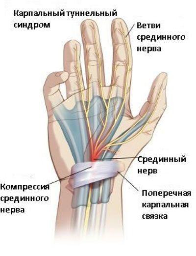 Почему немеет большой палец на руке: причины и лечение