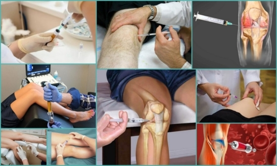 prp-терапия для суставов: отзывы, показания к процедуре