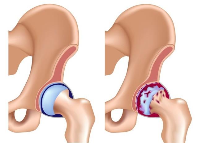 Коксит тазобедренного сустава у детей: симптомы, лечение