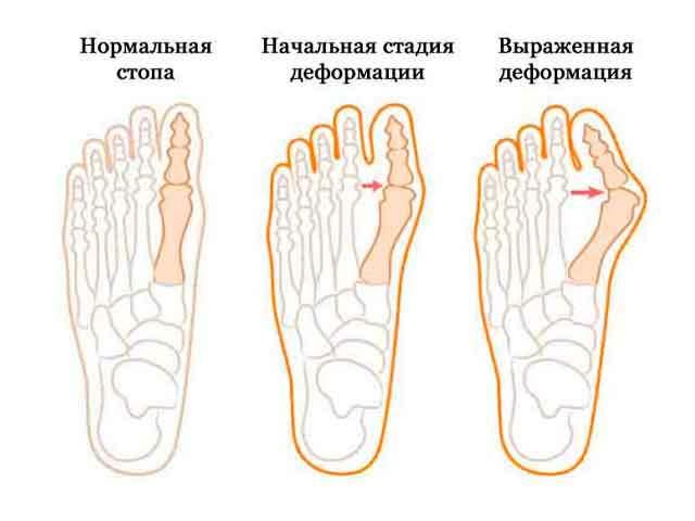 Как избавиться от косточки на ногах народными средствами