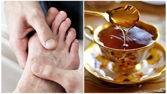 Мед при подагре: можно ли есть, способы лечения