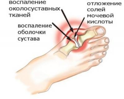 Диета при подагрическом артрите: рекомендации питания