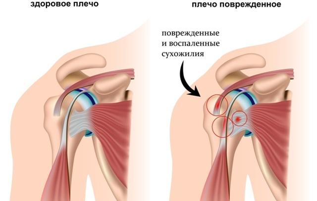 КТ плечевого сустава: что показывает и как проводят
